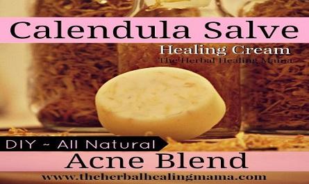 Calendula Healing Salve – Acne Blend